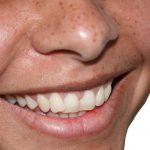 Stomatologiczne błędy – czyli jak nie myć zębów